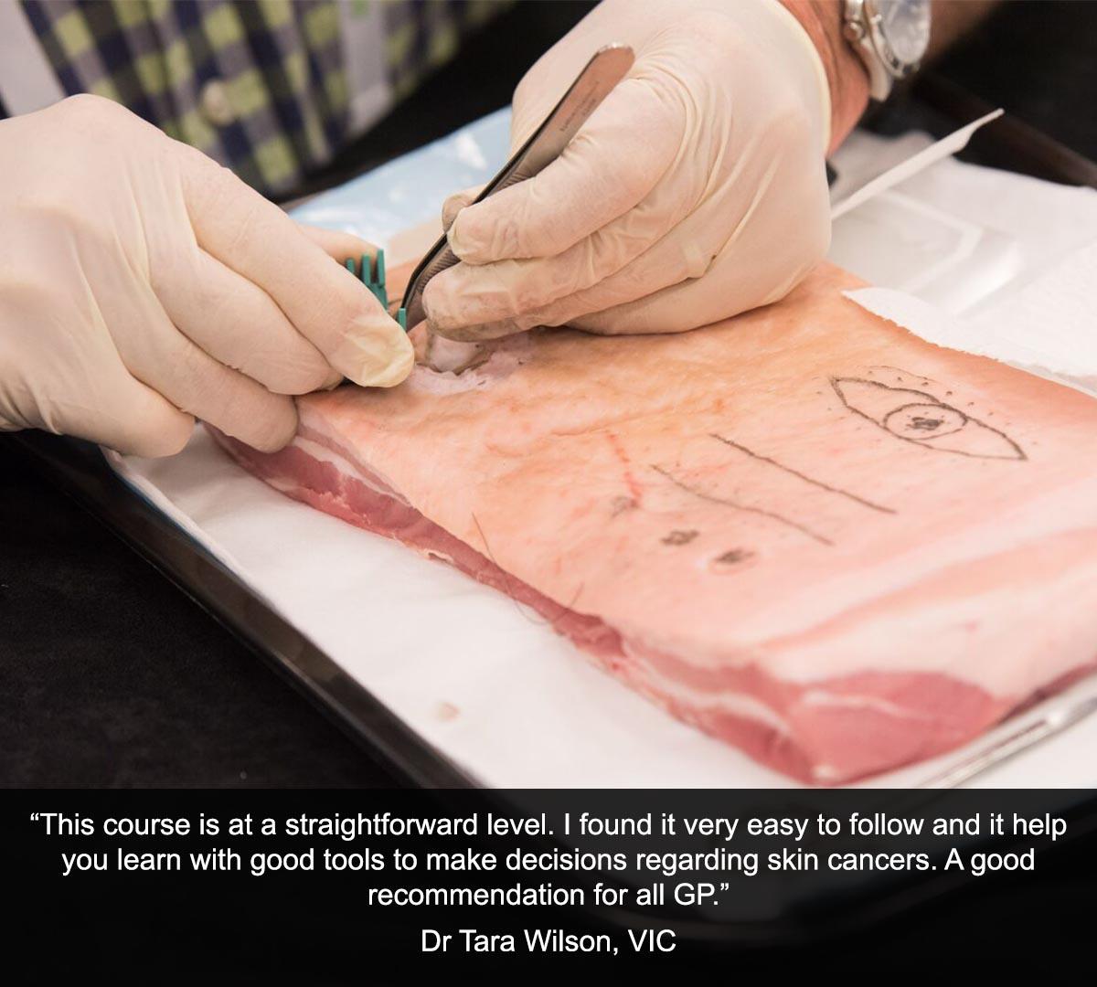 Professional Certificate of Skin Cancer Medicine
